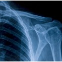 On-Site X-rays in Palm Beach